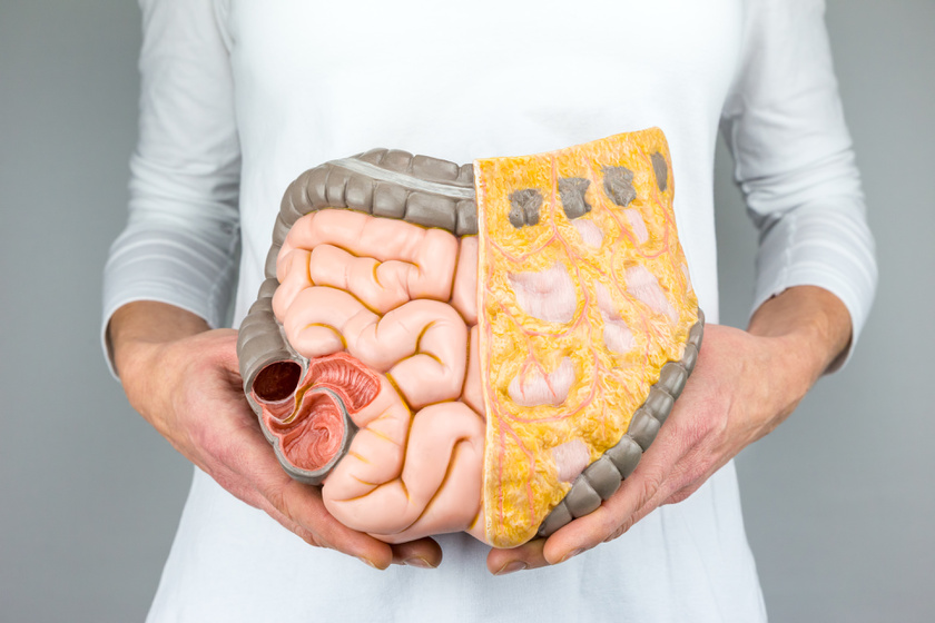 vastagbélrák tünetei férfiaknál