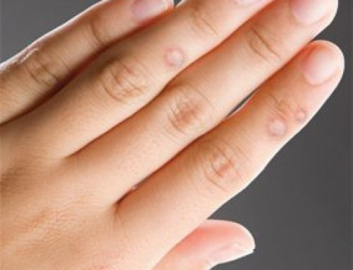 szemölcsök a kezén fokhagyma