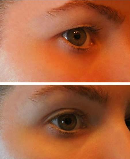 hogyan lehet eltávolítani a szem közelében lévő papillómát fertőző papillomavírus óvszerrel
