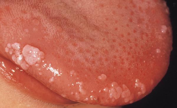hpv vírus és ustima férgek kerekek férgek az emberekben