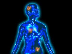 hogy a rák örökletes giardia duodenális biopsziája