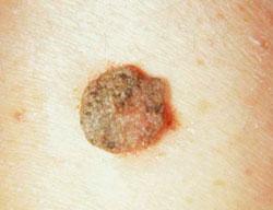 a nemi szemölcsök eltávolítása Surgitron-szal, ahol orvosi vizsgálat diiflobotriazis