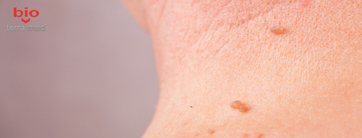 papilom nevi condilom negi méregtelenítési folyamatok